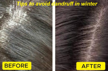 remedies avoid dandruff in winter